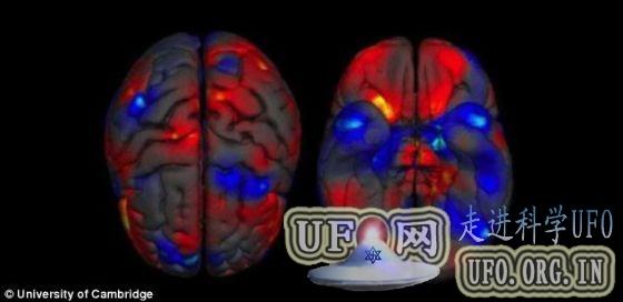 两性大脑差异图显示男性大脑比女性大的图片 第1张