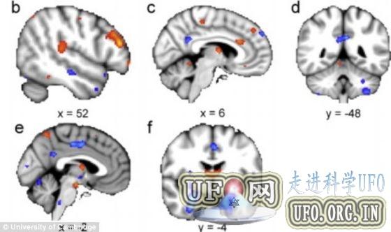 两性大脑差异图显示男性大脑比女性大的图片 第2张