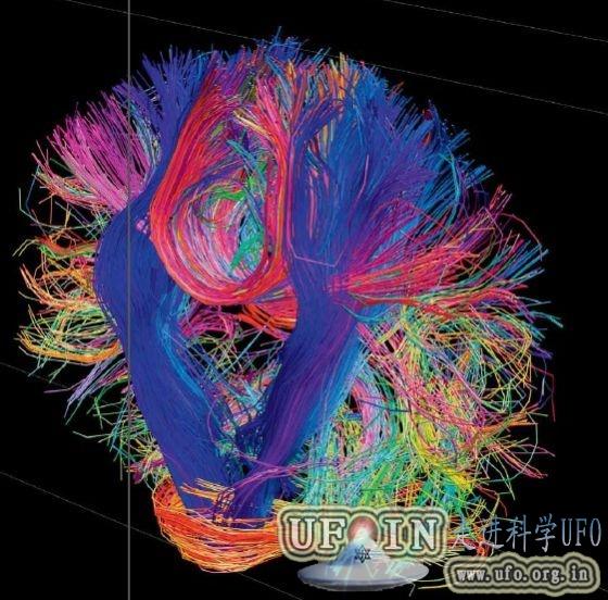 《环球科学》2013十大科学新闻:人类大脑计划的图片 第1张