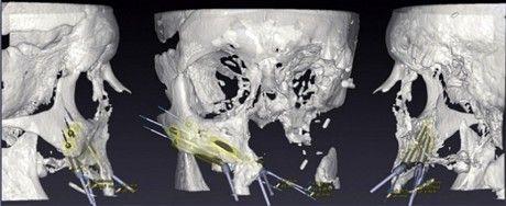 英国首位三维打印脸受益人计划结婚的图片 第3张