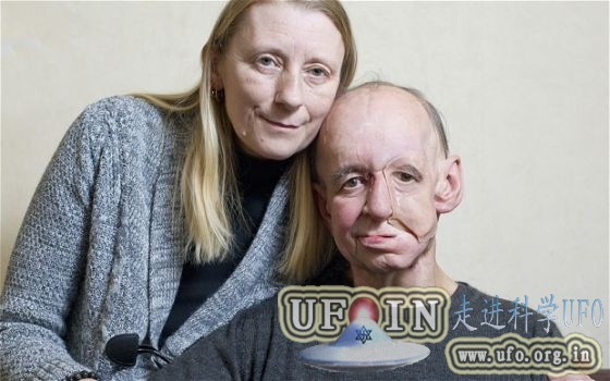 英国首位三维打印脸受益人计划结婚的图片 第1张