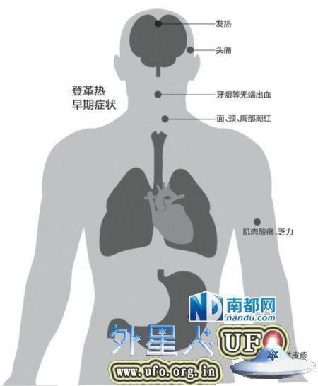 资料图:登革热早期症状。