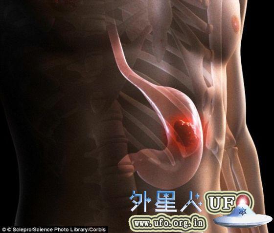 这些胃可用于模拟影响全球10%人口的胃病。 第2张