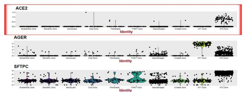 研究者分析了ACE2在每个个体中的细胞类型特异性表达模式。 第6张