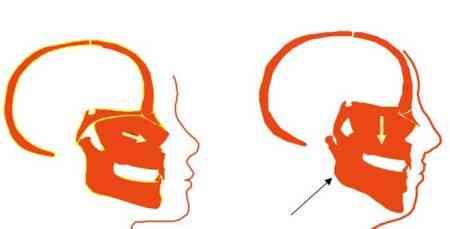 不同呼吸的情况:面部结构和嘴巴呼吸呼吸 第3张