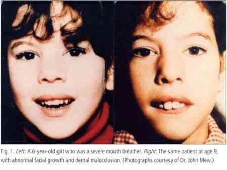 而对于口呼吸的人最常见变化有两个:上嘴唇抬起,下颚保持开放的姿势! 第4张