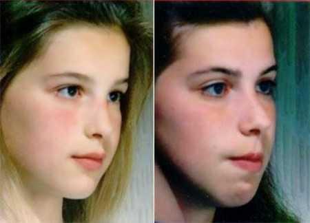 图为:双胞胎姐妹,左边用鼻呼吸,右边用口呼吸 第5张